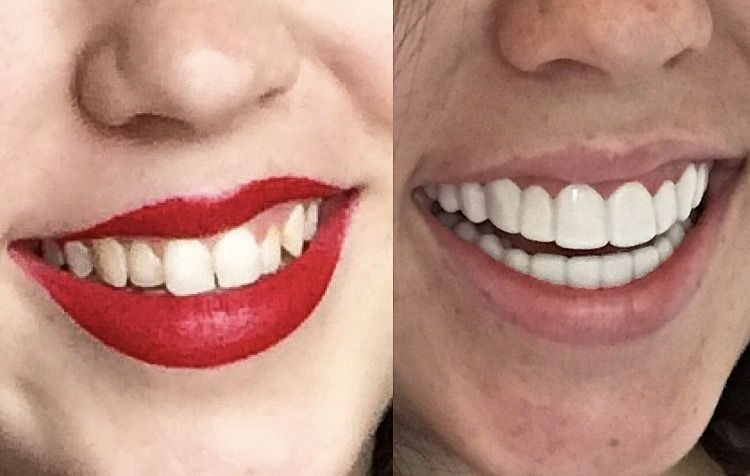 Attention: clip on veneers are now a thing (and I tried them)