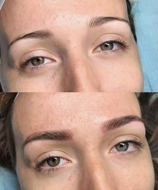 What Is Eyebrow Microshading Cost