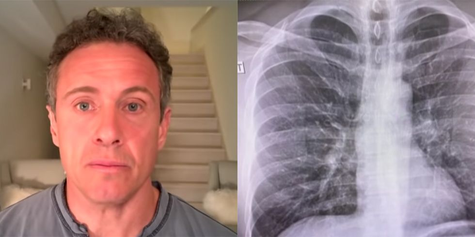 "Chris Cuomo Shares ""Scary"" Chest X-rays as His Coronavirus Symptoms Rage On"