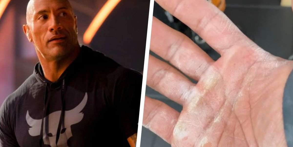 The Rock Showed Off His Torn, Calloused Hands on Instagram