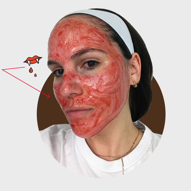 Vampire Facial: The Pros, Cons, and a Review of PRP Microneedling
