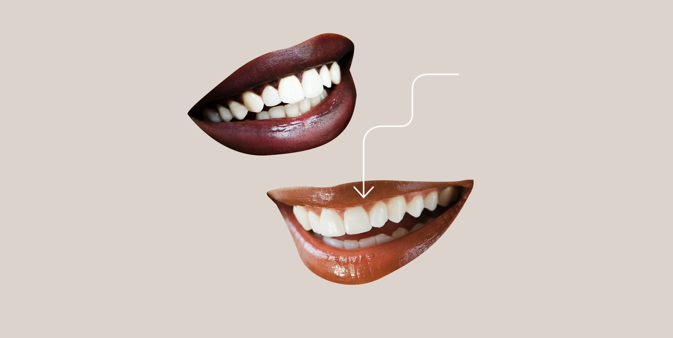 Dental Veneers Guide for 7: The Cost, Risks, Procedure, and More