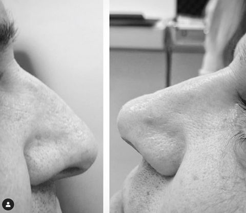 Nose, Skin, Shoulder, Chin, Joint, Neck, Jaw, Arm, Lip, Close-up,