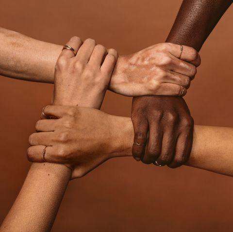 Vitiligo: causes, symptoms, treatment.