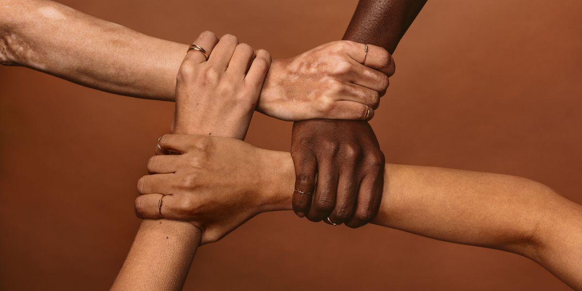 Vitiligo Causes Symptoms Treatment And Prevention