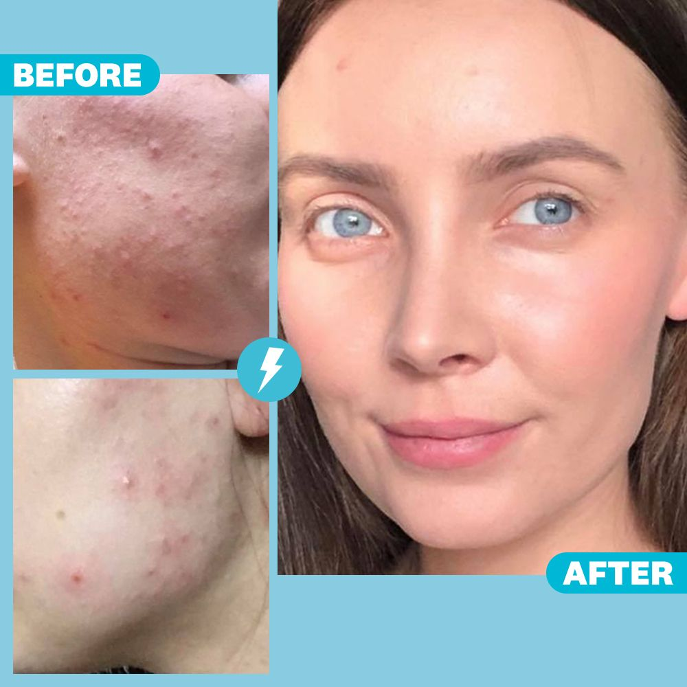 'I Cleared Up My Acne By Quitting Dairy And Seeing a Naturopath'