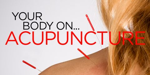 wh-body-on-acupuncture.jpg
