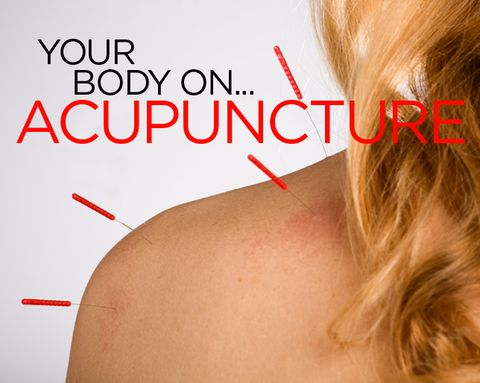 What Happens to Your Body When You Get Acupuncture