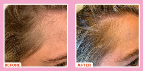 derma roller hair loss before and after