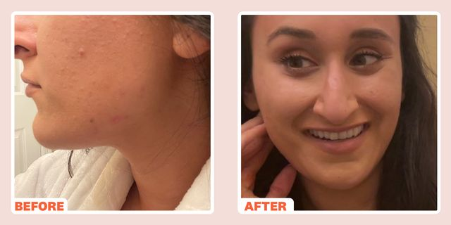 pcos acne lead image