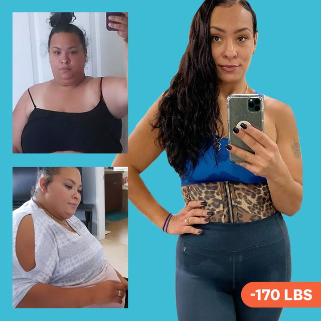 keto diet years after gastric bypass