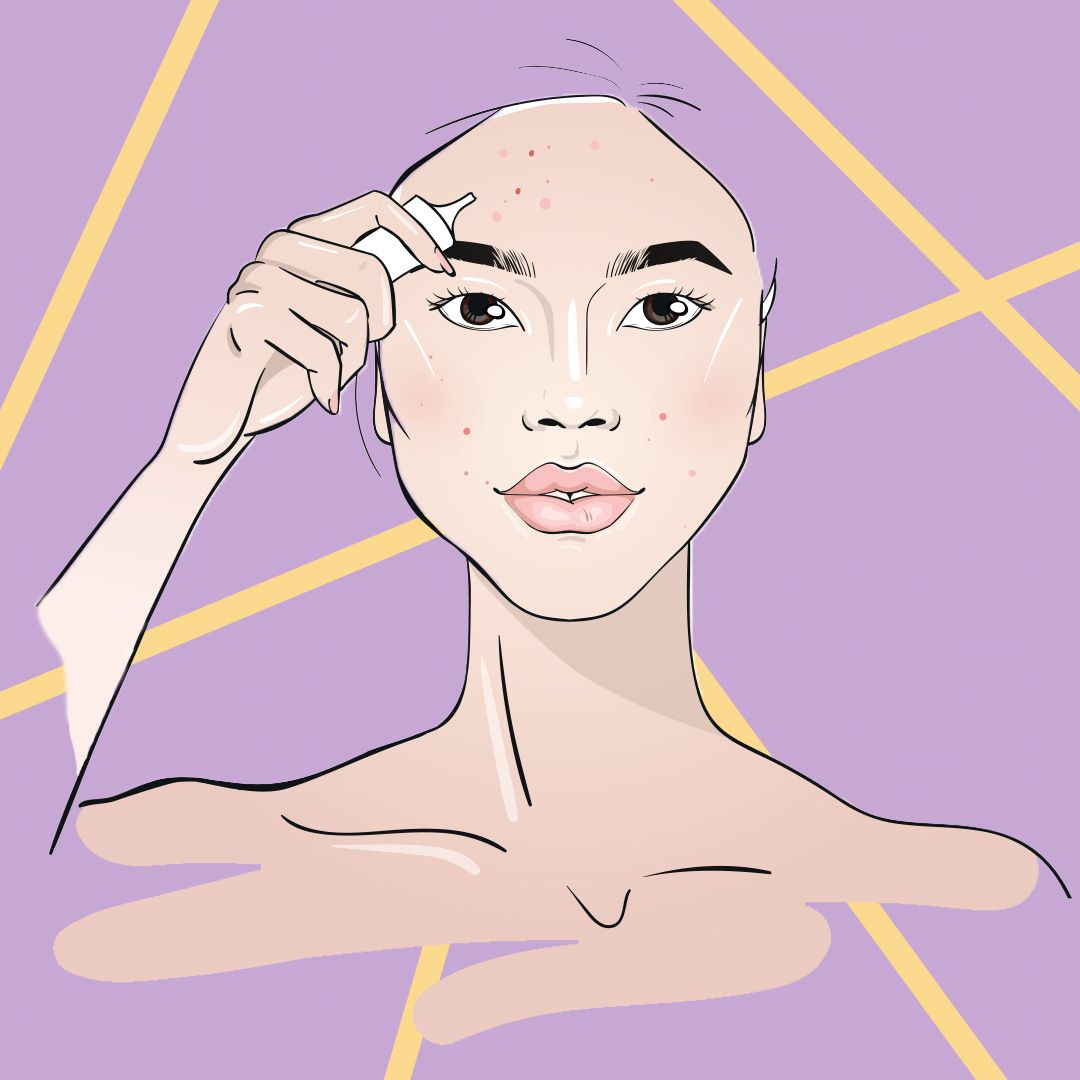 Confused by Your Breakouts? Try These 5 Things to Help You Decode Your Skin