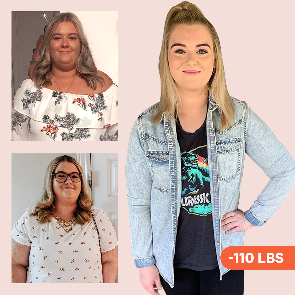 'I Lost 110 Pounds By Eating Healthy And Exercising After Weight-Loss Surgery'