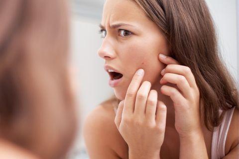peroxido de bezoilo para tratar el acné usos y  propiedades
