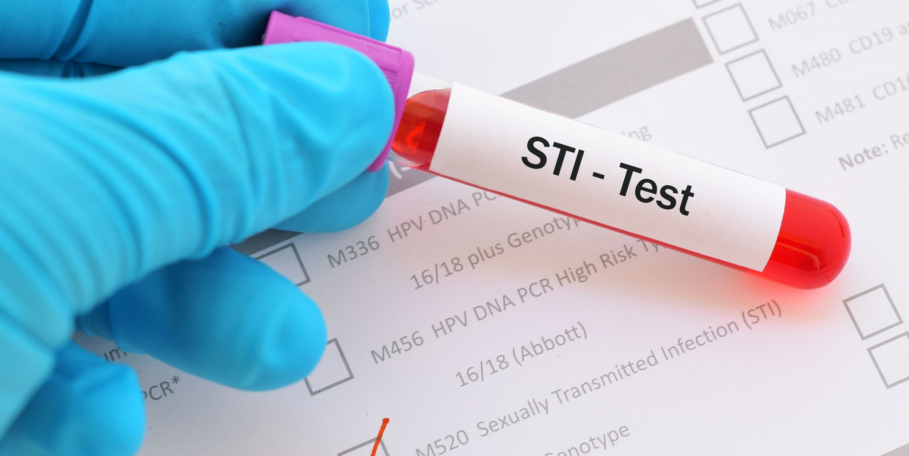 Sexually transmitted infection (STI) test
