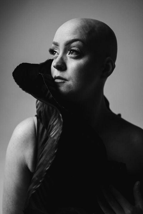Alopecia, Olivia Bentley, Made in Chelsea