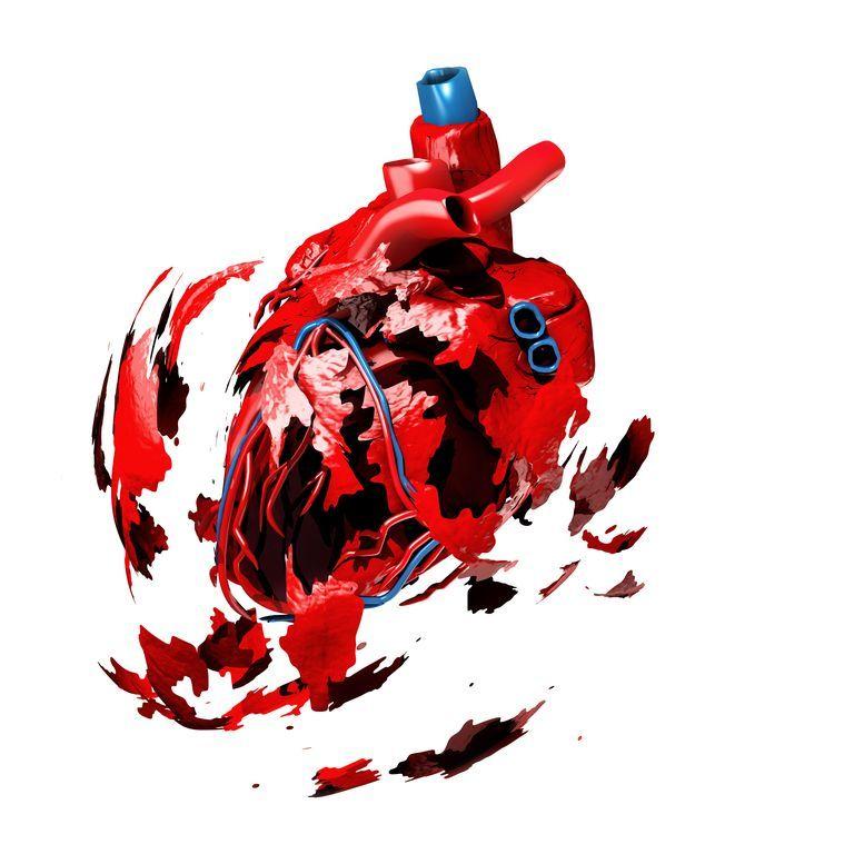 心臓 発作 原因
