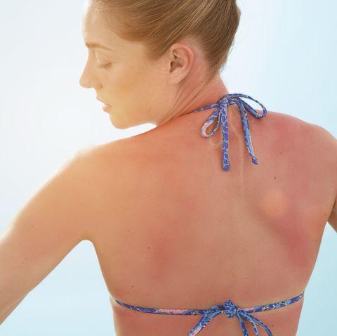 why sunburn itches