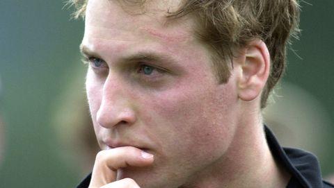 Il Principe William Ha Una Cicatrice Come Harry Potter