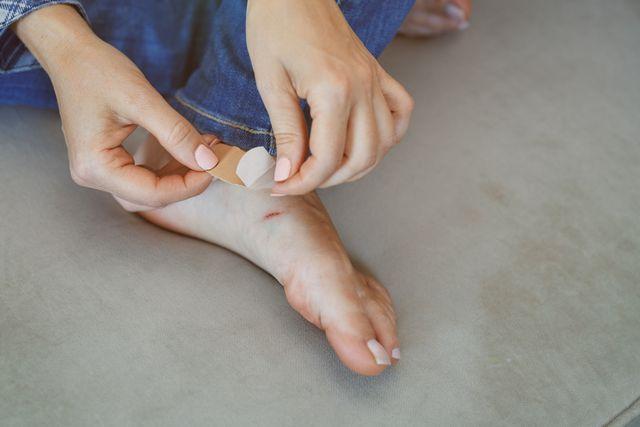 como arreglar las ampollas en los pies