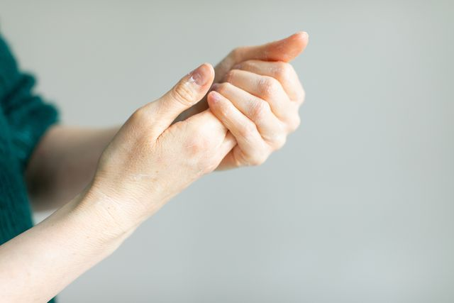 woman applying hand cream to relieve the dry skin caused by hand sanitizer