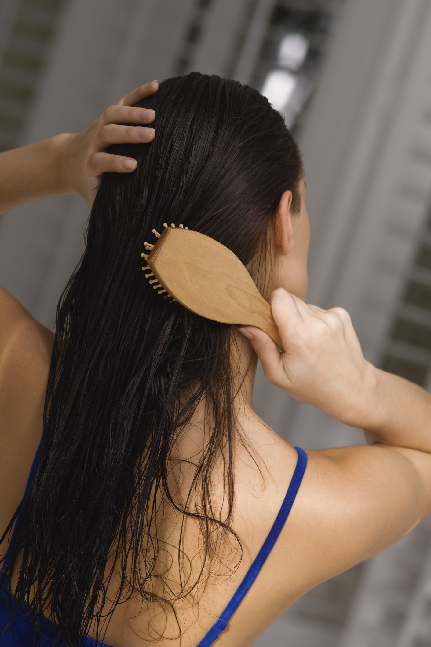 anemia can cause hair loss in women