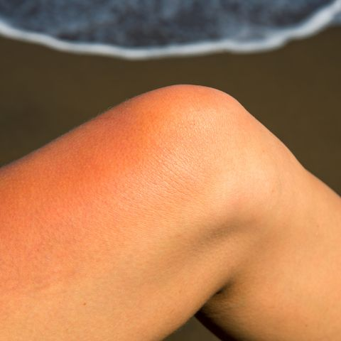 woman leg with red sunburn skin on seaside background sunburned skin redness and irritation dangerous sun