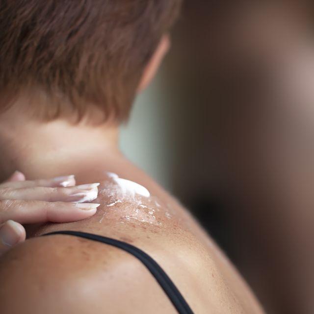 woman looking in mirror to see sunburned skin on shoulder that peeling off