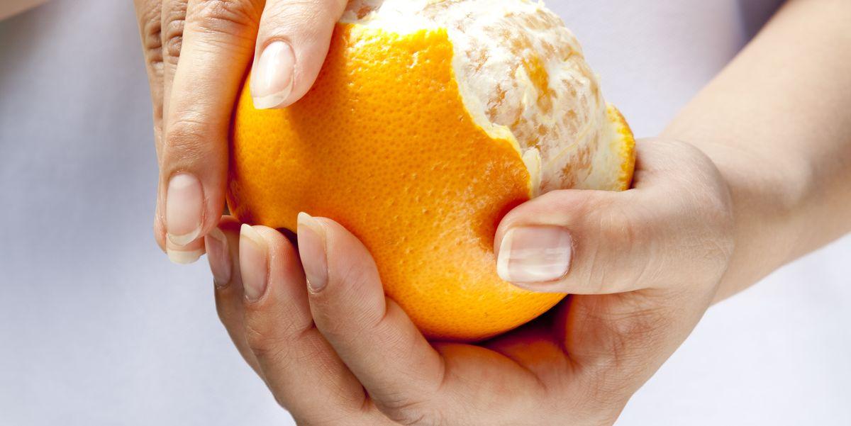 Dr Pimple Popper Removes Orange Leg Lipoma In Season 3 Ep