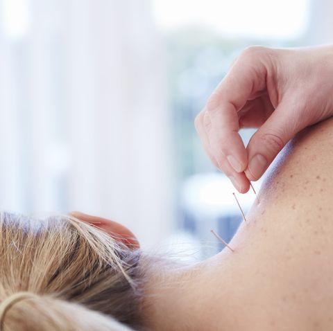 acupuncture for menopasue