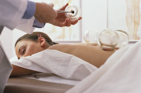 woman receiving cupping and acupuncture treatment