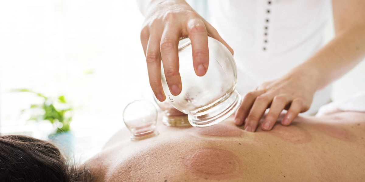 What Is Cupping Therapy Benefits Side Effects And More