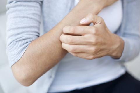 stress symptoms - hives and rashes