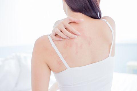 只用清水洗澡乾淨嗎?皮膚科醫師揭露實際後果:當心產生惡臭或感染