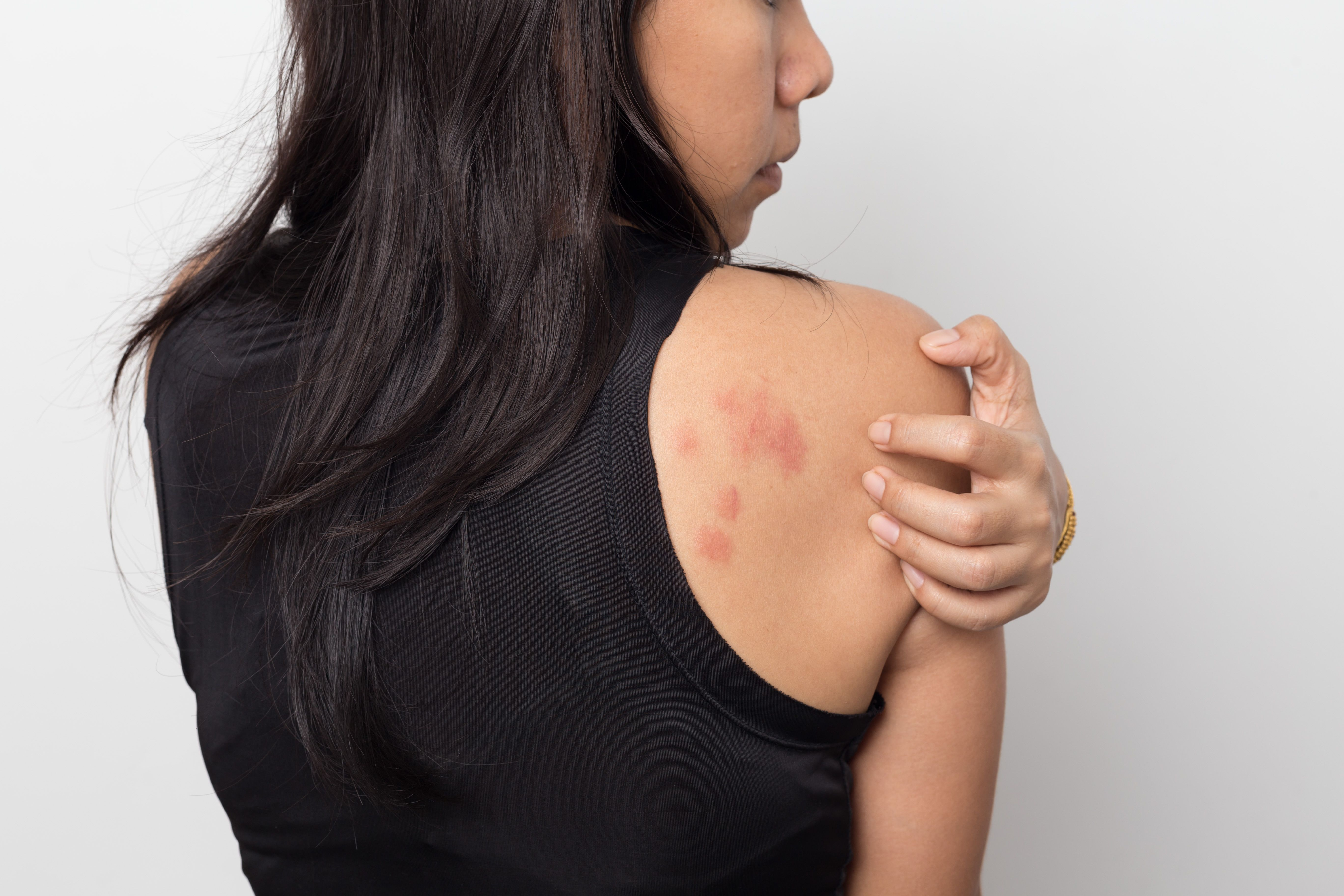 woman showing her skin itching behind , with allergy rash urticaria symptoms