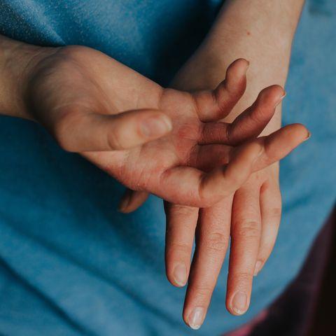 woman sick hands scabies