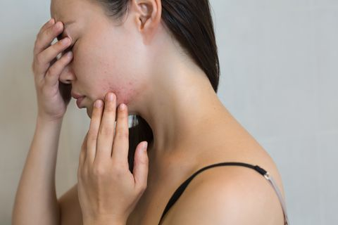Woman stressed from face acne.