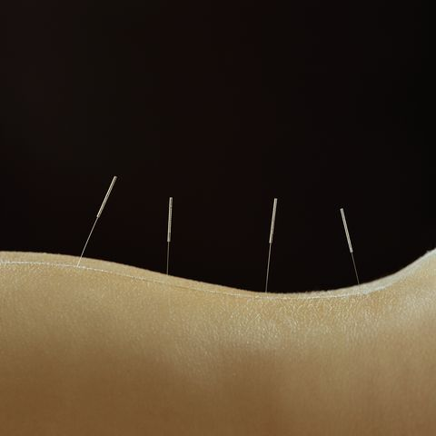 Woman with acupuncture needles in lower back, close-up