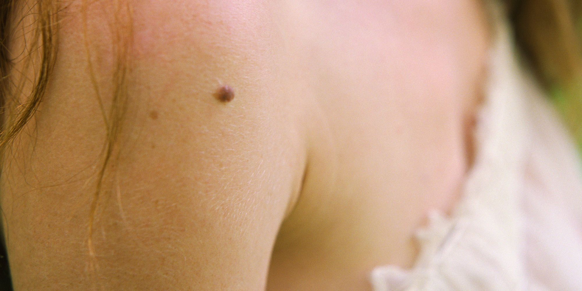 mole, moles, skin cancer