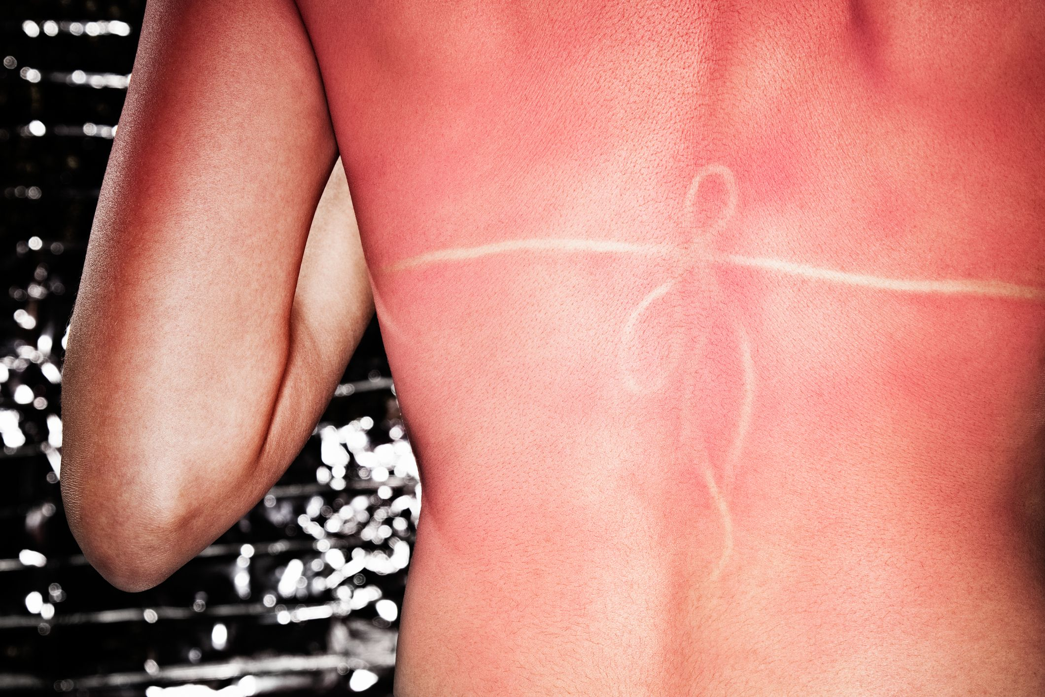 How to Tell If You Have Sun Poisoning