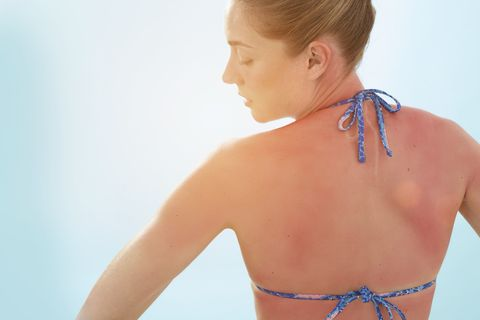 How to Stop Your Sunburn From Itching So Darn Bad