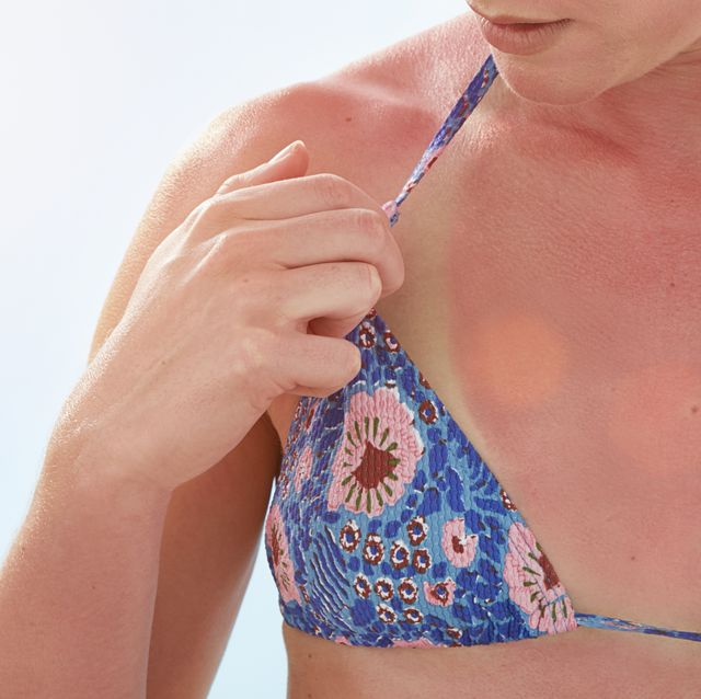 woman with sunburnt chest