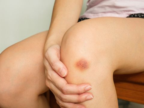 causes of bruising