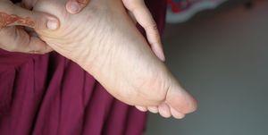 Hemiplejia dedos pie, zapatillas Kipchoge