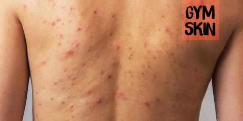 body acne from sweating during working out