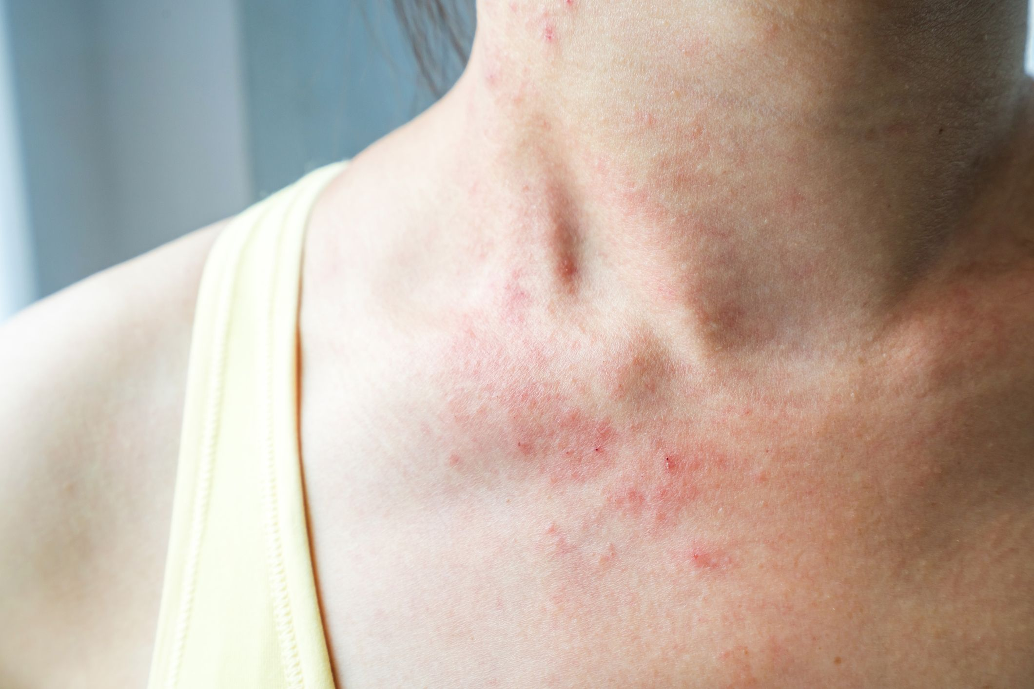 rash back of neck