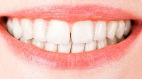 Waar zijn tanden van gemaakt