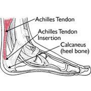 Achilles Tendinitis Medical Image