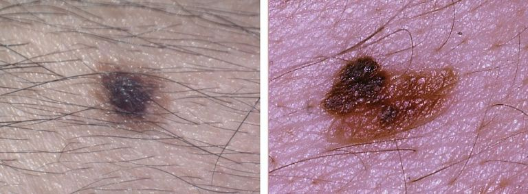 asymmetry mole