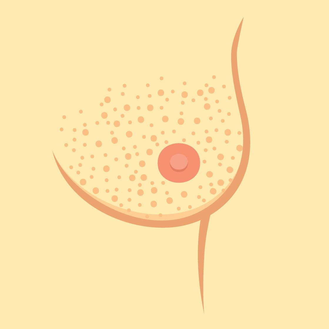 Breast Texture changes
